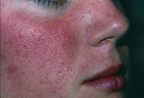 Pictures of rosacea. - Healthtopquestions - HTQ