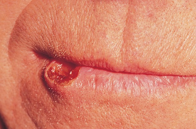 What Does Mouth Lip Cancer Looks Like Htq