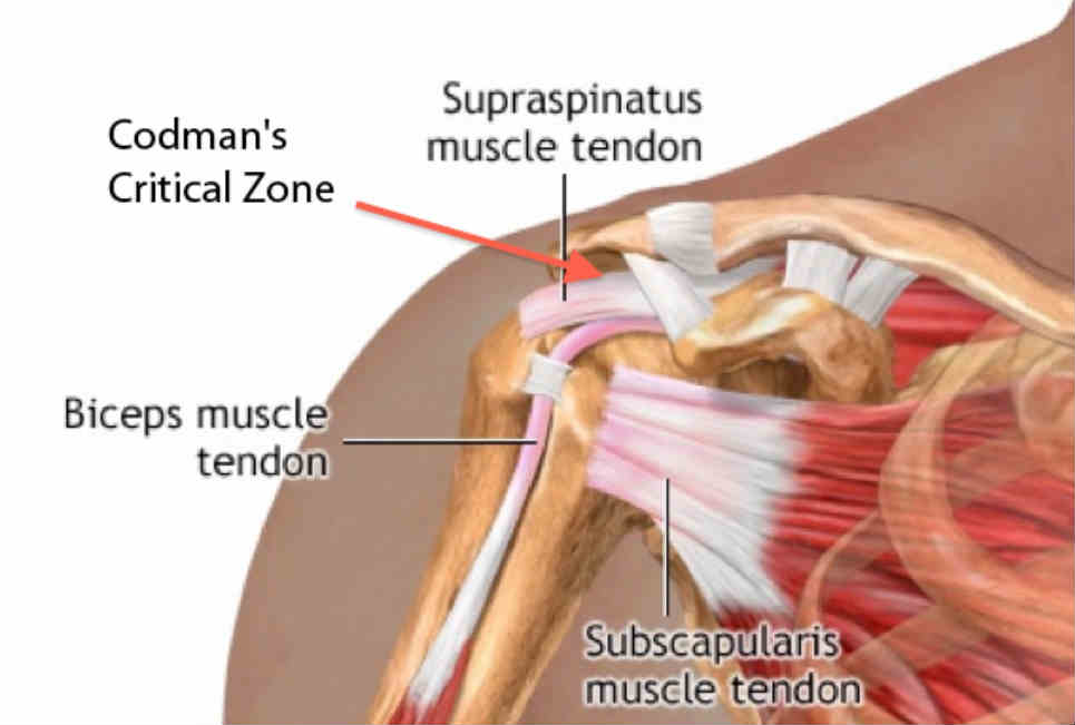 What Is Critical Zone Supraspinatus Tendon