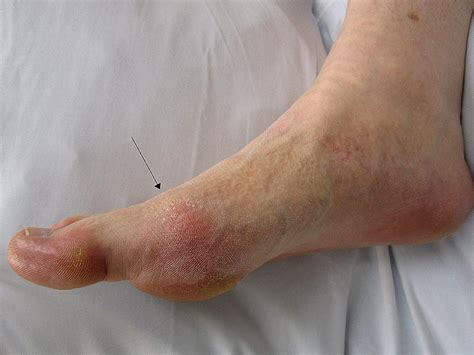Foot gout, skin peeling and unexpected pain