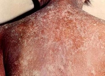 Can I Take a Look of Norwegian Scabies Pictures? - HTQ