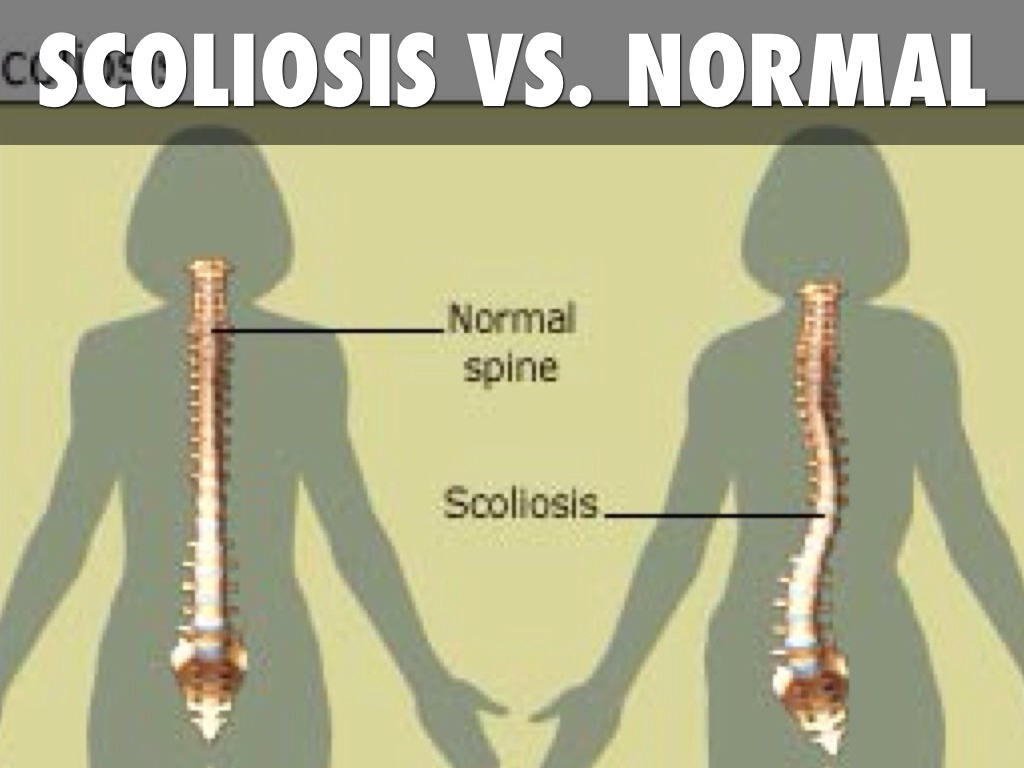 can you show me some pictures of scoliosis