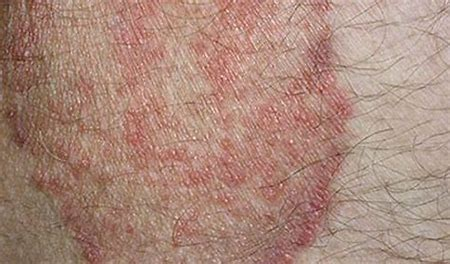 Any Pictures of Heat Rashes? - Healthtopquestions - HTQ