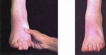 What Should We Know about Pitting Edema