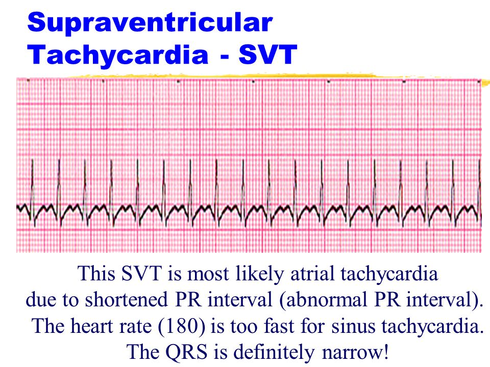 what is the difference between the normal heart rate and