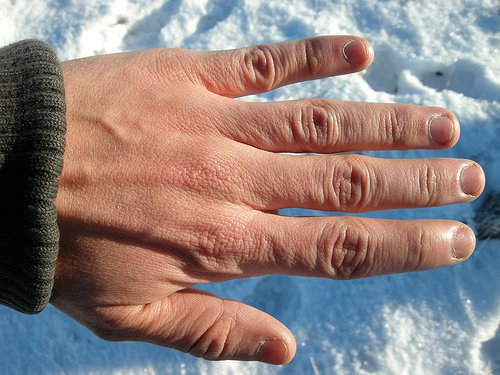 Some pictures of Mild Frostbite Healthtopquestions HTQ