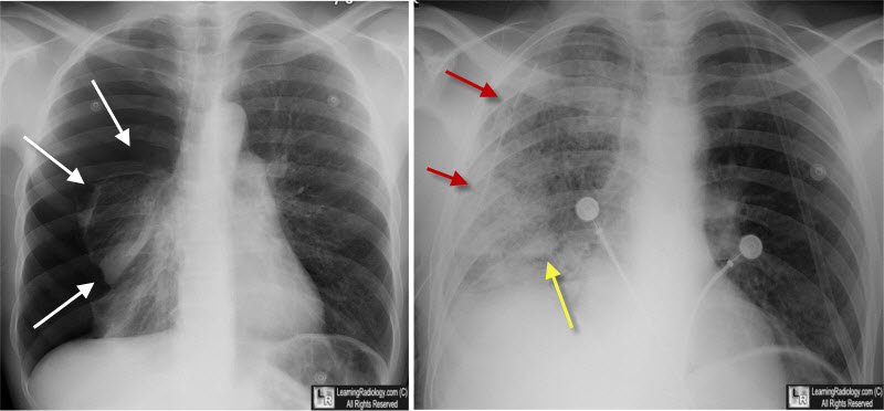 Most Likely To Questions >> Can You Show Me Some X-ray Pictures of Pulmonary Edema? - Healthtopquestions - HTQ